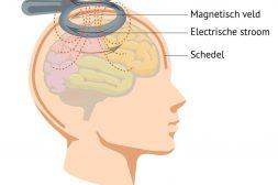 rTMS behandeling en de magnetische spoel